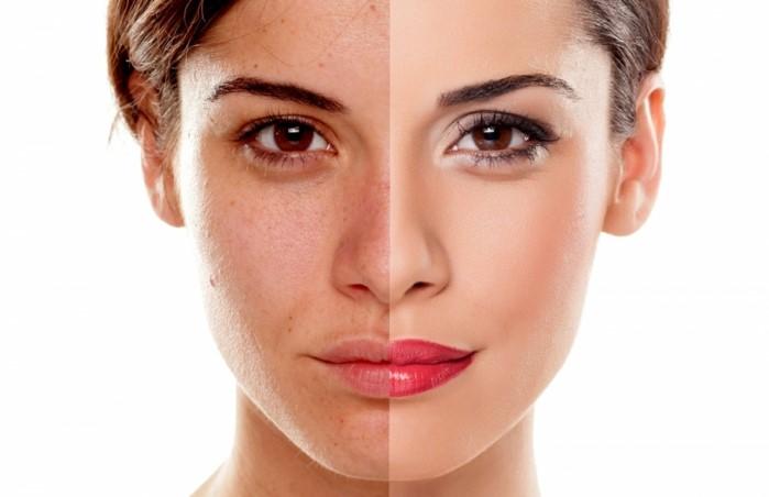 enzympeeling test, vor und nache der langfristigen verwendung, idee rote lippen