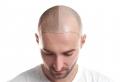 Die beste Haarklinik wählen – nützliche Tipps und Empfehlungen