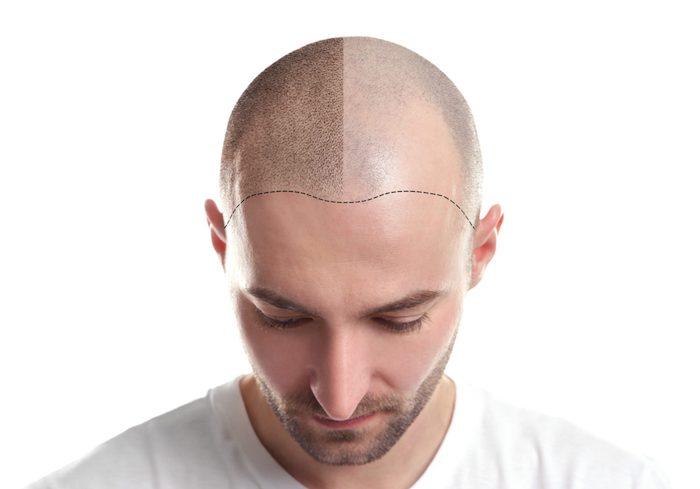 Mithilfe eines zuverlässigen Partners die beste Haarklinik wählen