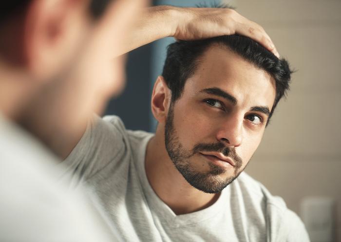 Die Haarverpflanzung wird Ihnen das Selbstbewusstsein wiedergeben