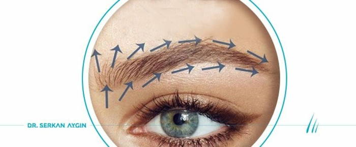Augenbraue Haartransplantation in Türkei