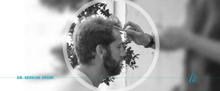 ein wildes Haar nach der Haartransplantation in Türkei