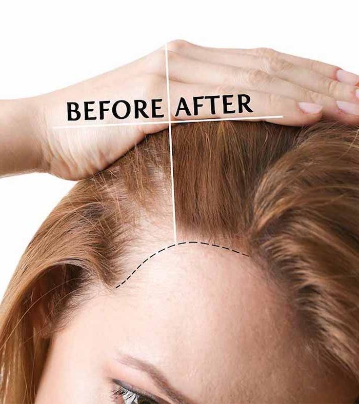 Haartransplantation bei Frauen, alle nützlichen Informationen rund um die Haartransplantation