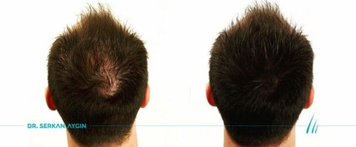 Vor der Haartransplantation und nach der Haartransplatatation in Türkei
