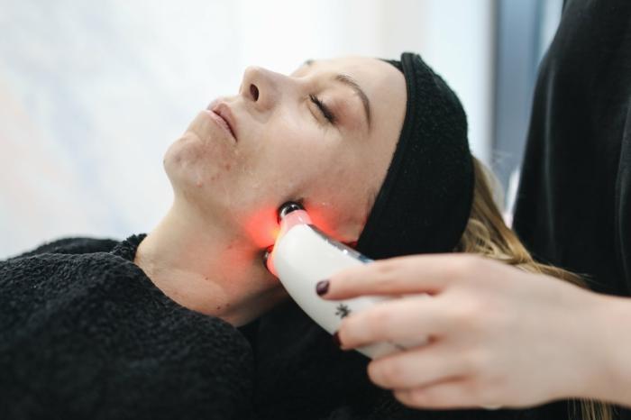 Dermatologie was ist das, Behandlung von Couperose mit Laser, ästhetische Dermatologie,