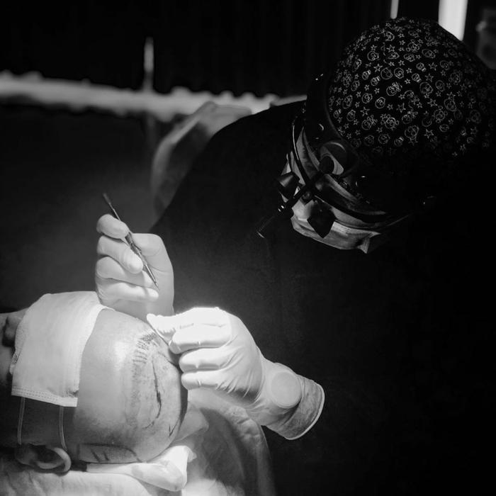 haartransplantation vorher nachher fotos junger ausseihen haare transplantieren lassen türkei
