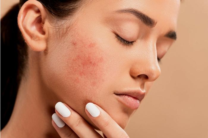 hautpflege produkte gegen akne körperpflege australian bodycare teebaumöl körperpflegemittel