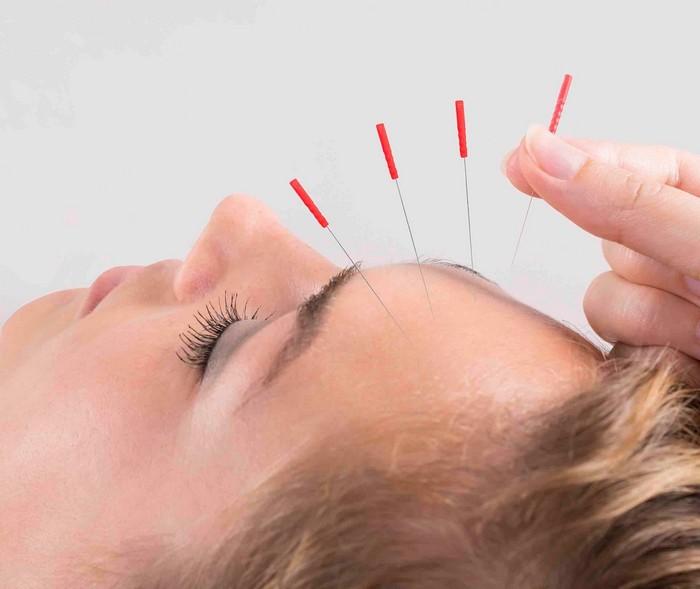 einseitige kopfschmerzen kopfschmerzen arten was hilft gegen migräne einseitige kopfschmerzen akupunktur machen tipps gegen kopfschmerzen