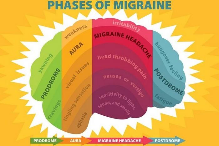 kopfschmerzen was tun starke kopfschmerzen migräne kophscmerzen arten migräne etapen grafik