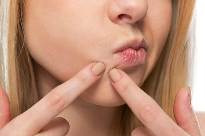 blonde frau drück einen pickel aus was hilft gegen akne und pickel hautpflege richtig machen tipps und tricks