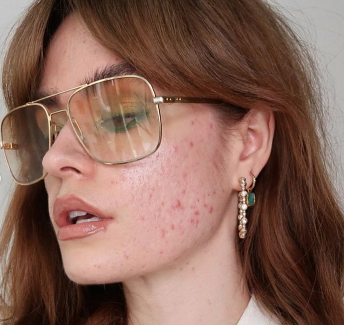 große moderne sonnenbrillen lange braune haare apfelessig gegen pickel unreinheiten gesicht pflege