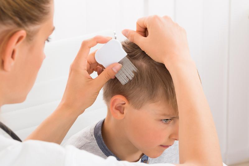 kleiner-junge-mit-läusen-im-haar-kopfläuse-nissen-bekämpfen
