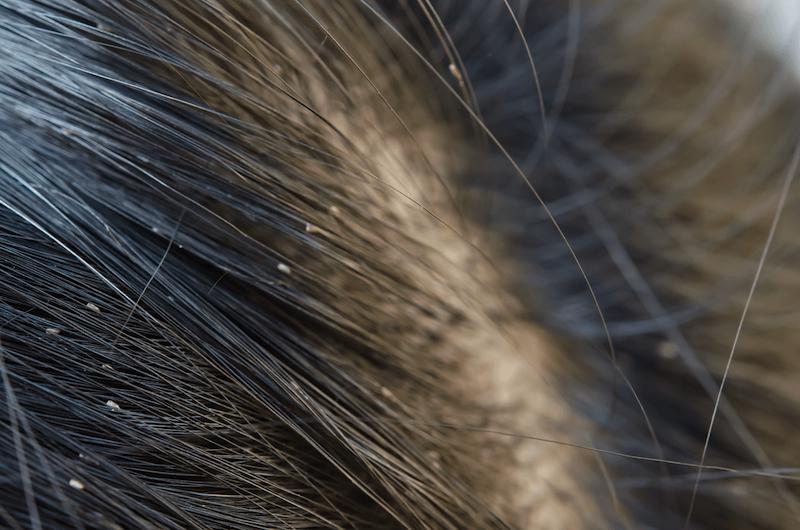 nahaufnahme kopfläuse was hilft gegen läuse hausmittel diy