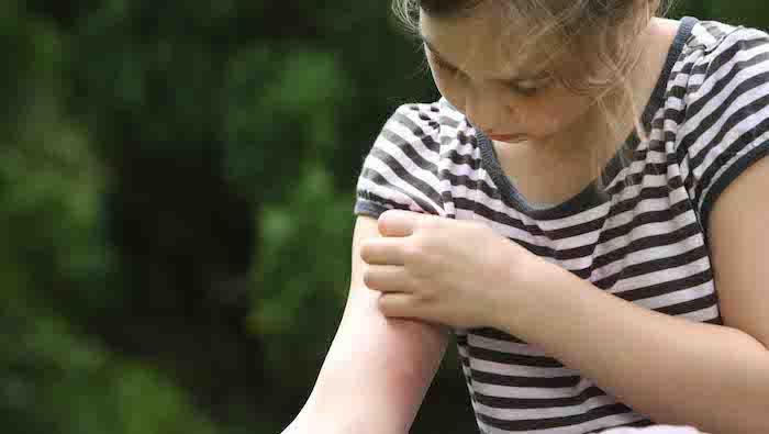 steckmücken vertreiben nützliche methoden und hilfsmittel was ist der beste mückenschutz