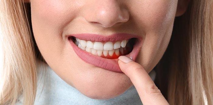 zahnfleischschmerzen hausmittel bei zahnschmerzen zahnschmerzen bei hausmittel was tun bei zahnschmerzen zähne kleinkind frau mit zahnfleischentzündung