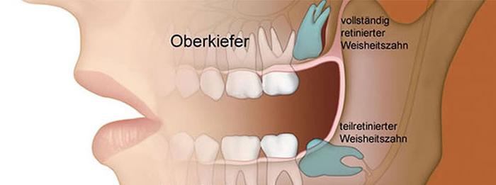 zahnfleischschmerzen starke zahsnchmerzen was tun bei zahnschmerzen entzündungshemmende hausmittel zahnschmerzen tabletten bild vom mund teilen