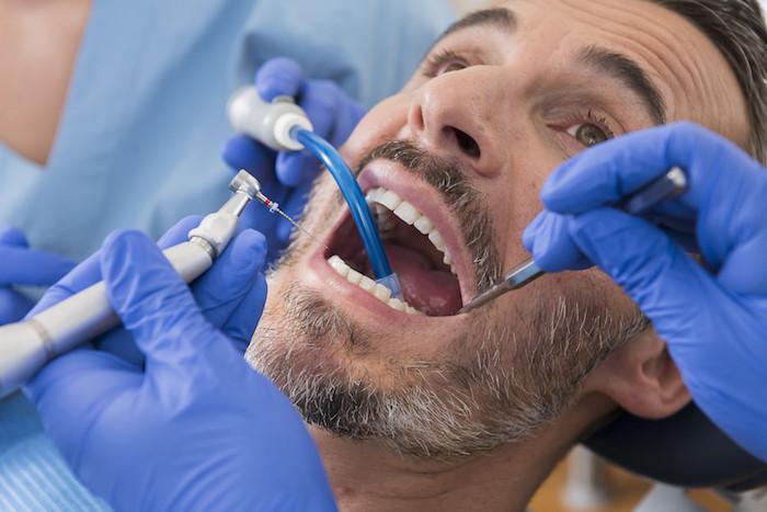 zahnnerv beruhigen hausmittel karies selbst behandeln entzündung im mund hausmittel zahnwurzenentzündung selbst heilen mahn beim zahnarzt geöffneten mund